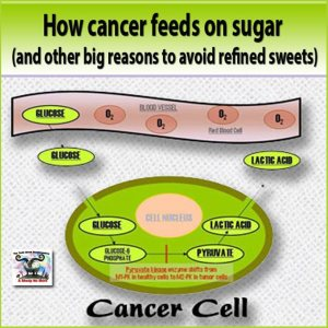 sugar_promotes_cancer